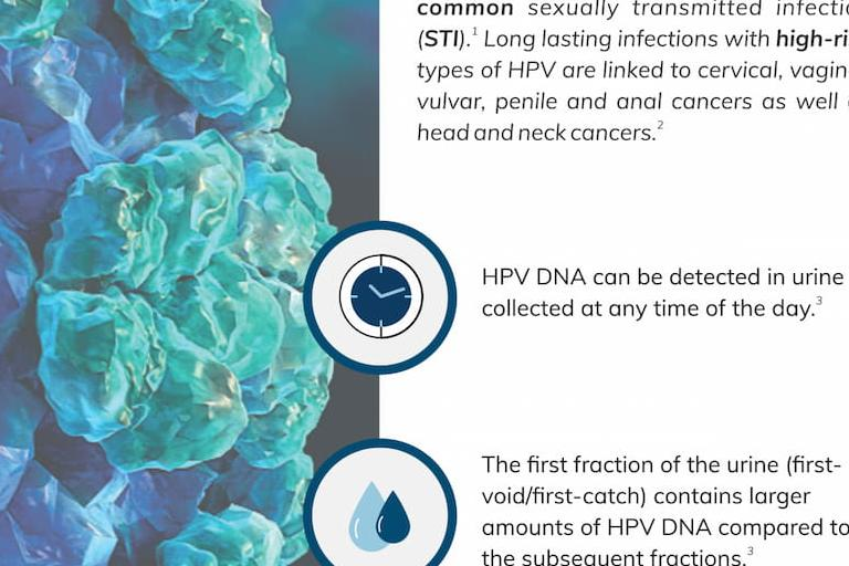 HPV DNA in urine facts (infographic)