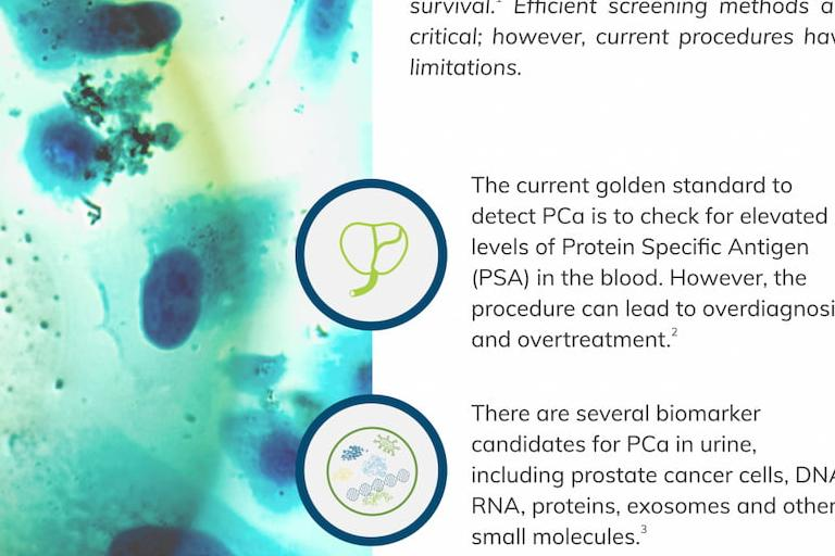 Prostate cancer biomarkers facts (infographic)