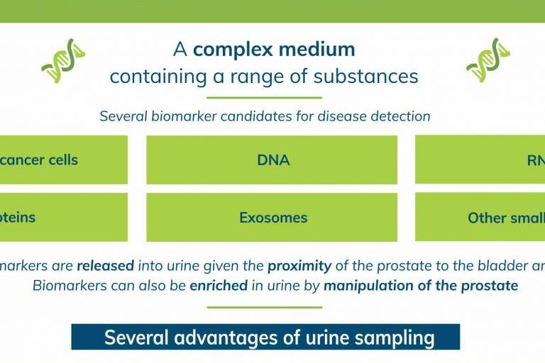 Prostate cancer: urine as a sample type (infographic)