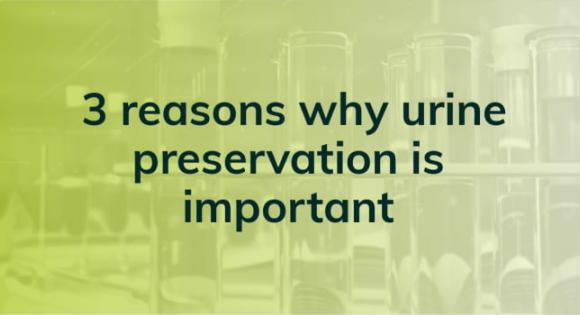 3 reasons why urine preservation is important